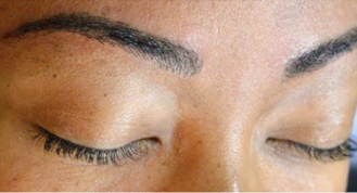 A brow template is drawn in stage 1 before microblading process starts
